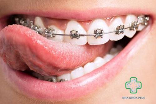 Niềng răng ảnh hưởng gì không? Gây tổn thương má và môi