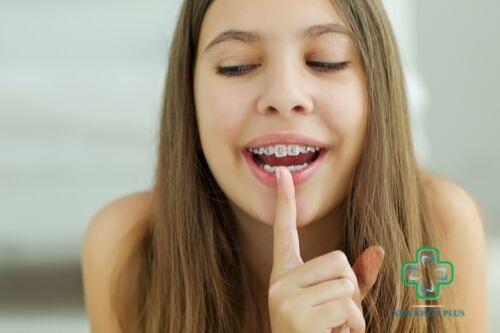 niềng răng ảnh hưởng đến khuôn mặt