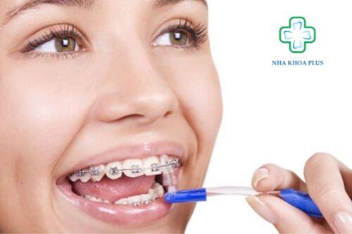 niềng răng có ảnh hưởng đến sức khỏe không