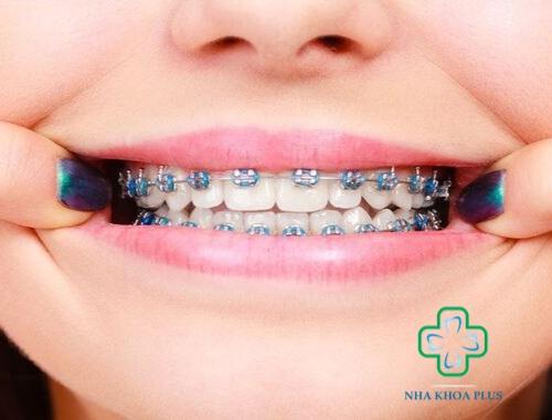 Niềng răng mắc cài kim loại giá bao nhiêu tiền? Loại nào tốt?