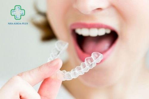Niềng răng tháo lắp là gì? niềng răng vô hình