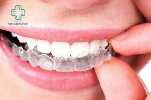 Niềng răng tháo lắp là gì? giá bao nhiêu