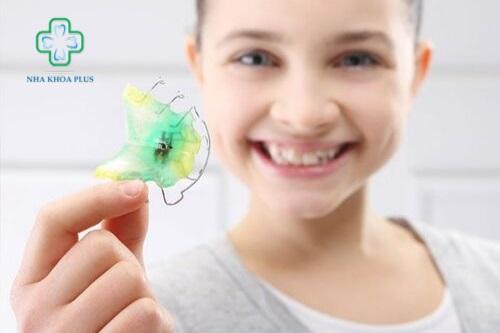 Niềng răng tháo lắp là gì? niềng răng tháo lắp kim loại