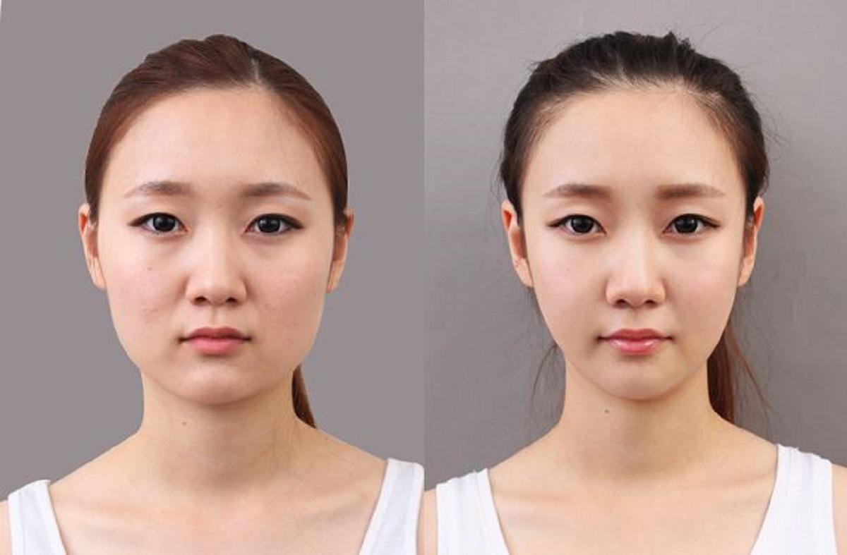 Phẫu thuật gọt hàm hạ gò và sau khi phẫu thuật hạ gò má