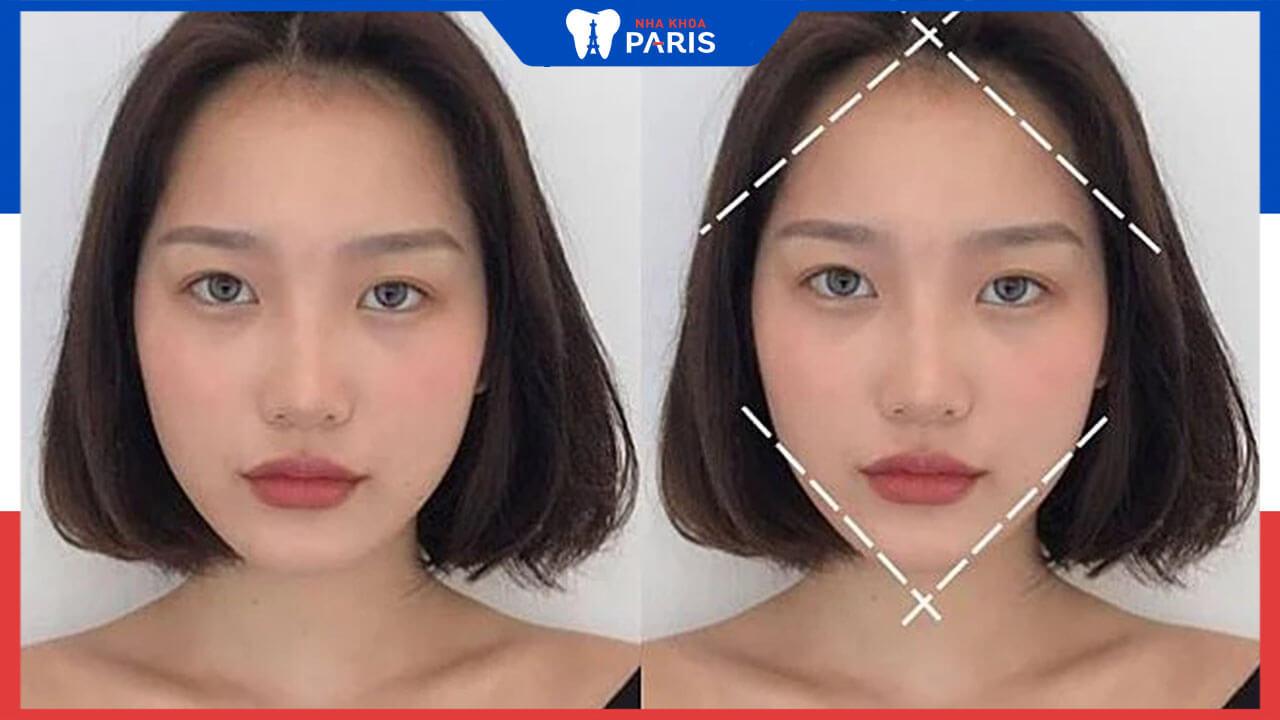 Ai cần phẫu thuật mặt ngắn? Quy trình phẫu thuật mặt đẹp chuẩn V-line