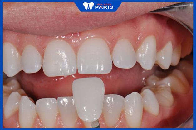 Phương pháp bọc răng sứ nào hiệu quả