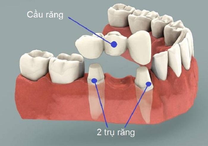 câu hỏi thường gặp khi làm cầu răng sứ