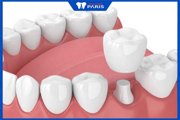 Phương pháp trồng hàm răng sứ hiệu quả