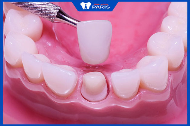 Quy trình bọc răng sứ thẩm mỹ