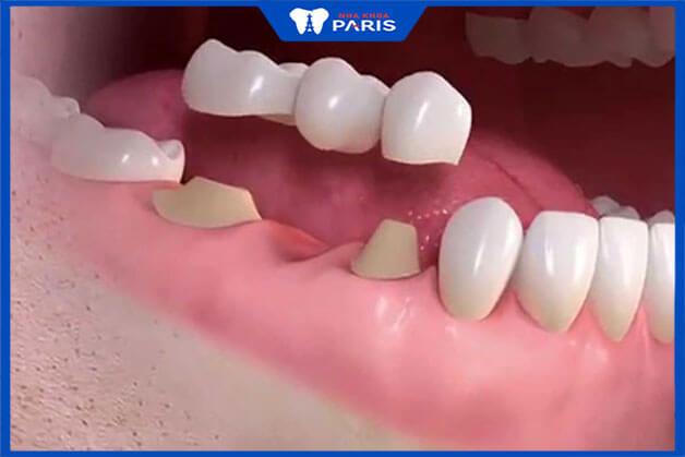 Quy trình trồng răng sứ toàn sứ