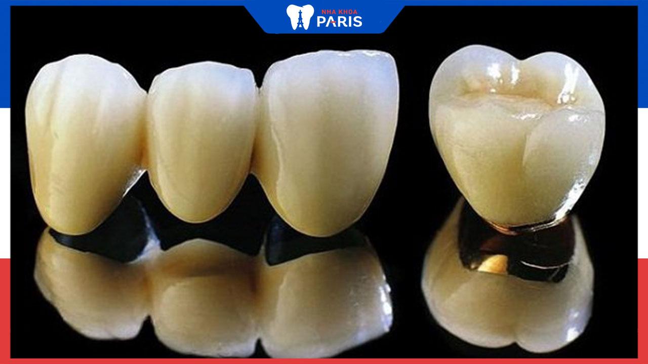 Bọc răng sứ kim loại thường là gì? Có tốt không?