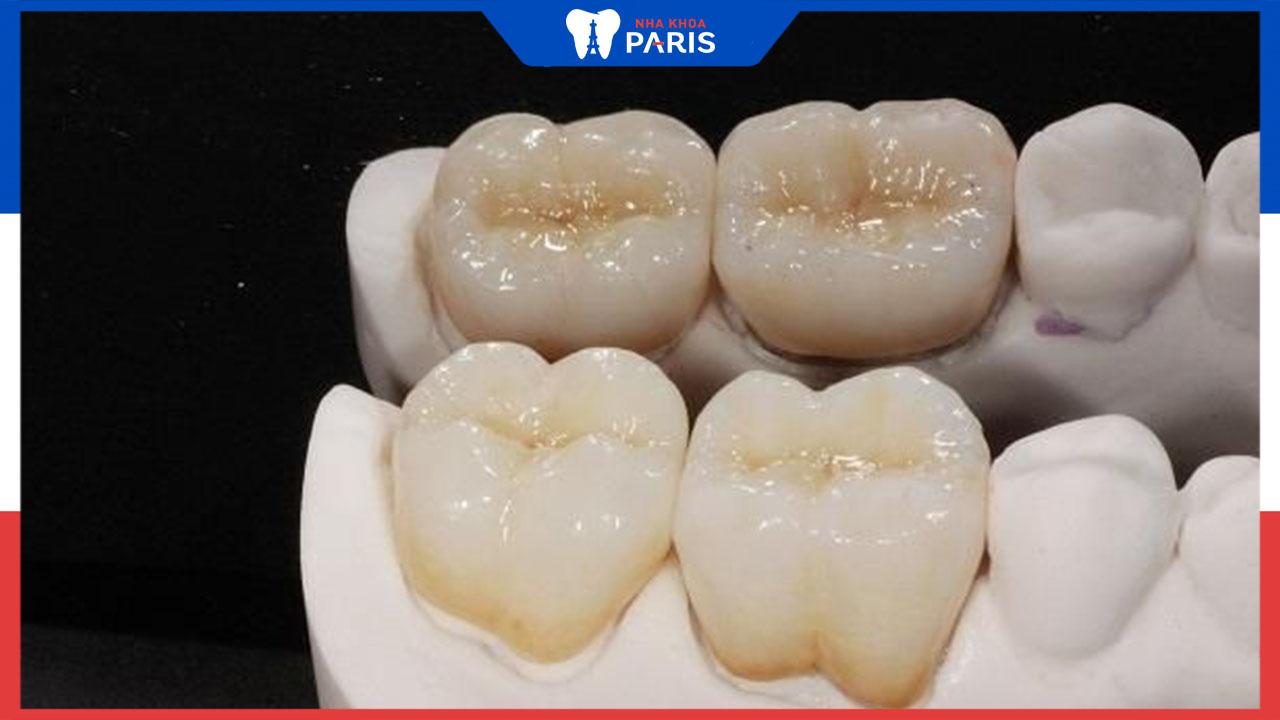 Răng sứ kim loại thường là gì? Có tốt khi phục hình?
