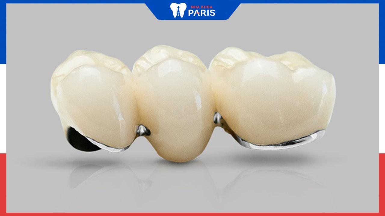 Tìm hiểu răng sứ kim loại có gây đen viền nướu không