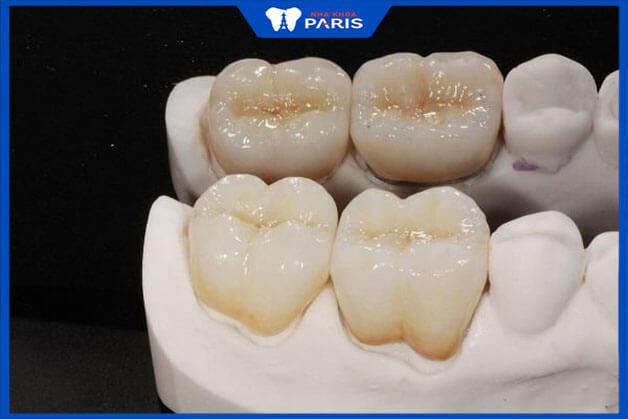 Răng sứ Titan có ưu điểm và hạn chế gì khi dùng
