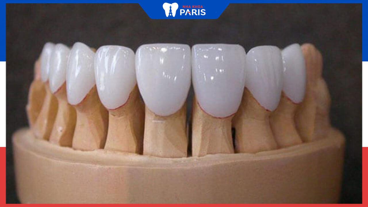 Những thông tin về răng sứ Titan hữu ích cho người dùng