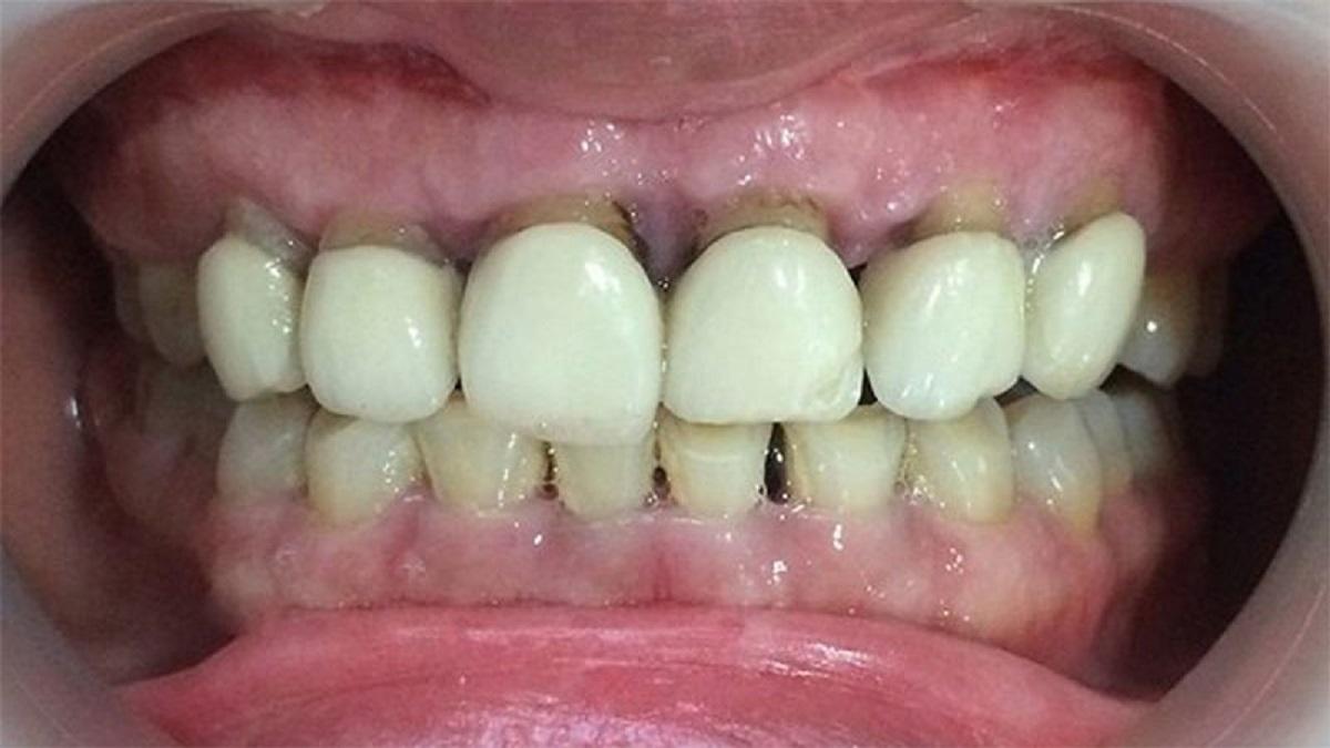 Răng toàn sứ có gây hôi miệng hay không? Hạn chế từ bọc răng sứ?
