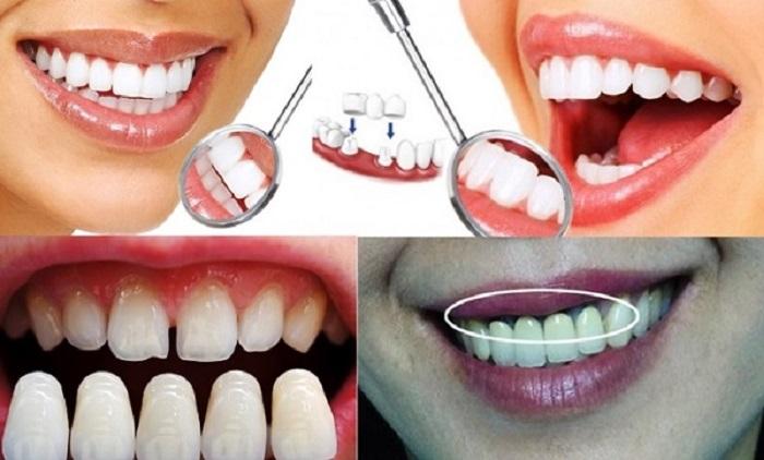 Phương pháp vệ sinh răng miệng chưa đạt chuẩn