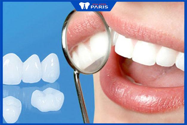 Sau khi dán răng sứ nên lưu ý điều gì