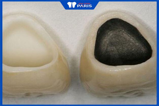 So sánh 2 loại răng sứ kim loại và răng sứ không kim loại