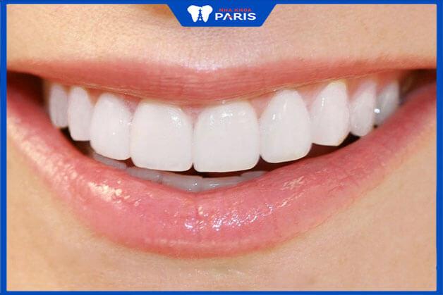 Thời gian bọc răng sứ thẩm mỹ là bao lâu