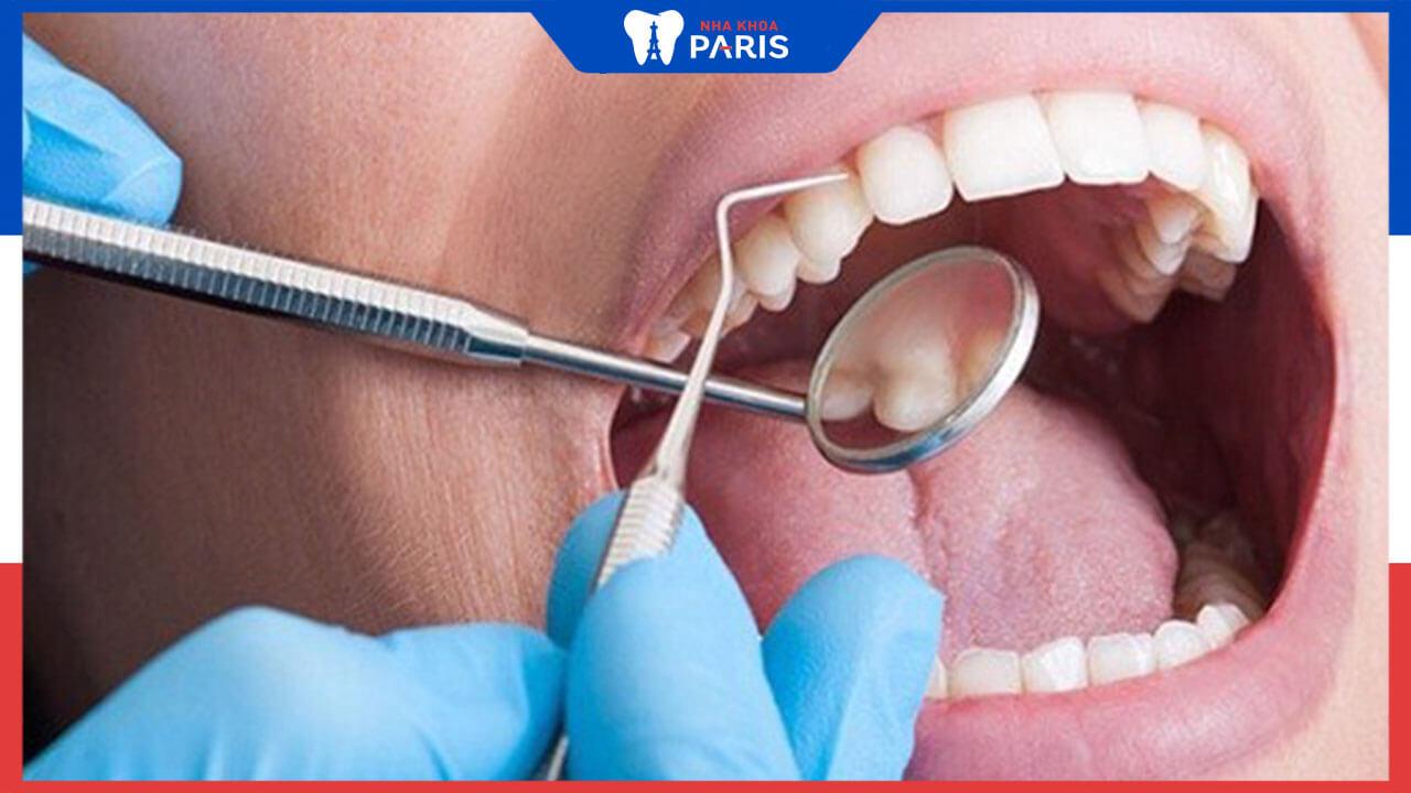 Thời gian bọc răng sứ thẩm mỹ là bao lâu?