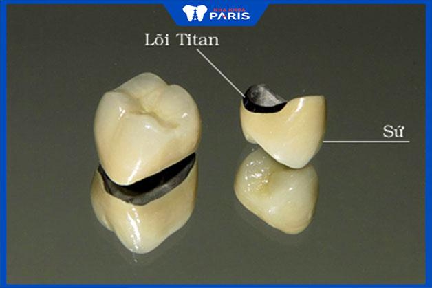 Tìm hiểu răng sứ Titan là gì