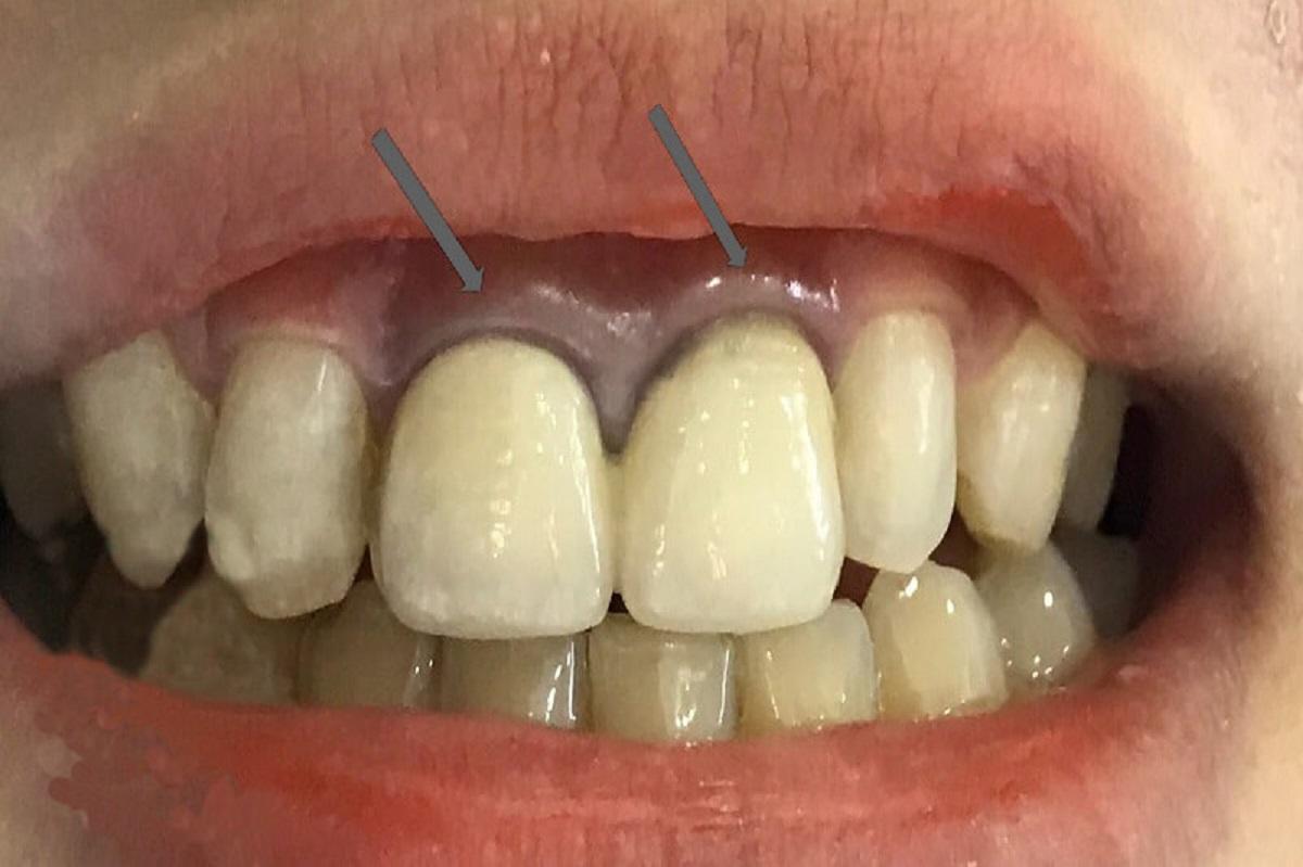 Tìm hiểu về các loại răng sứ không kim loại tốt nhất hiện nay