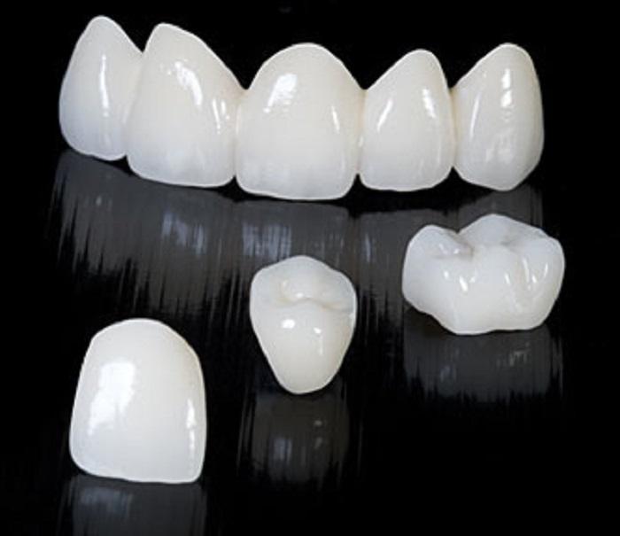 Vì sao được gọi là răng sứ không kim loại