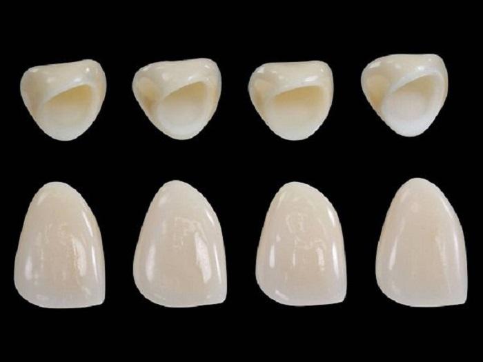 Răng sứ không kim loại có gì nổi bật
