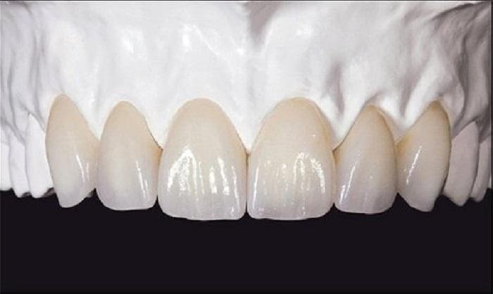 Răng sứ không kim loại Lava