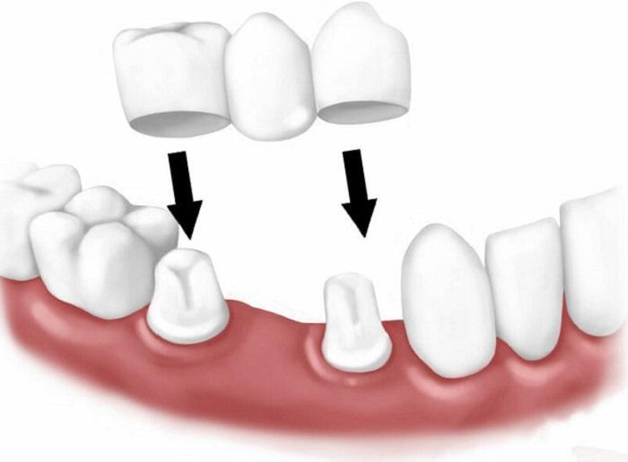 Làm cầu răng sứ có đau không?