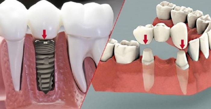 Cầu răng sứ có cấu tạo như thế nào