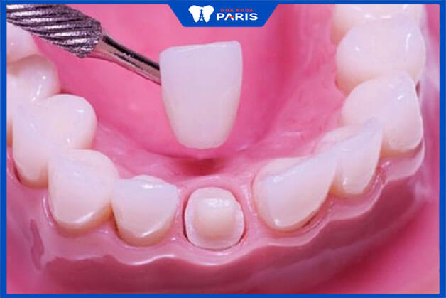 Trồng răng sứ toàn sứ là gì