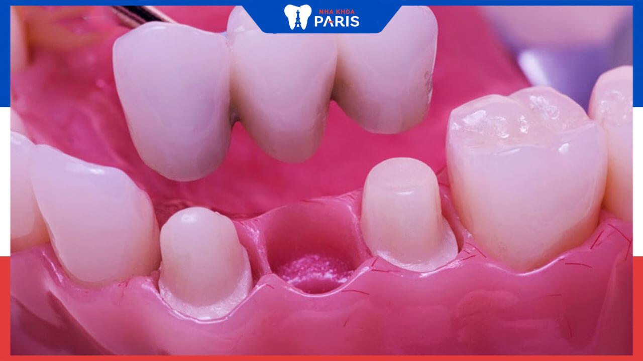 Trồng răng sứ toàn sứ là gì? Có mấy loại trên thị trường