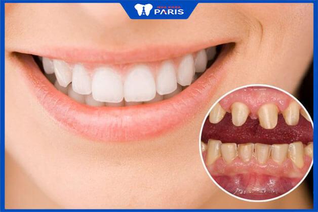Trường hợp nào nên bọc răng sứ toàn bộ