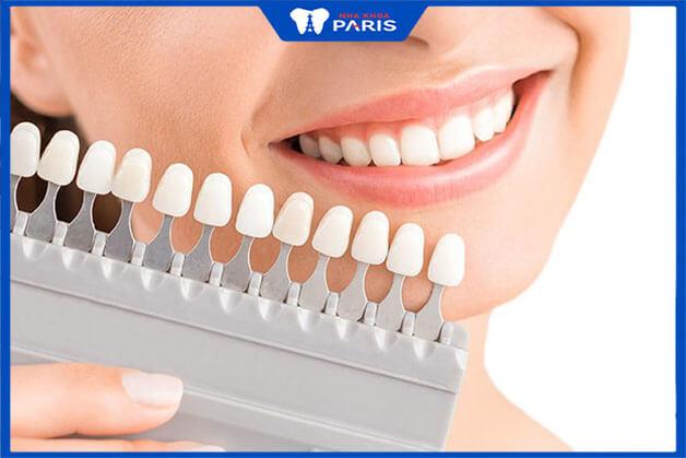 Ưu điểm công nghệ bọc răng sứ không mài
