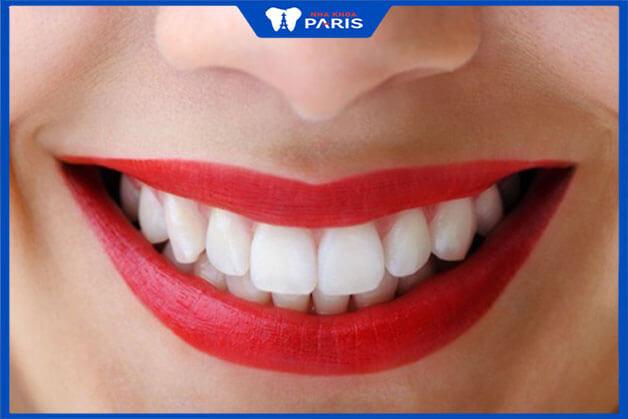 Ưu điểm khi dán Veneer răng