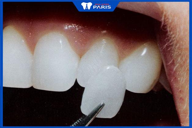 Ưu và nhược điểm của dán răng sứ không mài răng