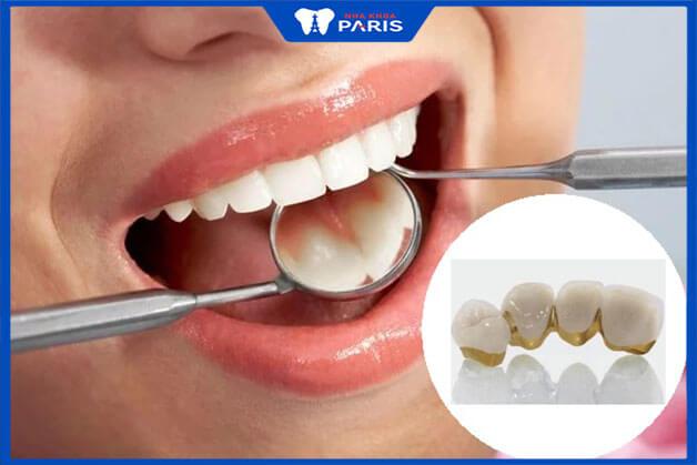 Ưu điểm và nhược điểm của cầu răng sứ kim loại