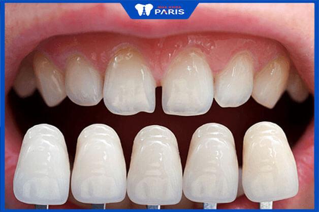 Vì sao nên dán răng sứ