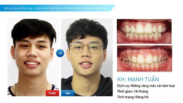 Hình ảnh khách hàng trước và sau