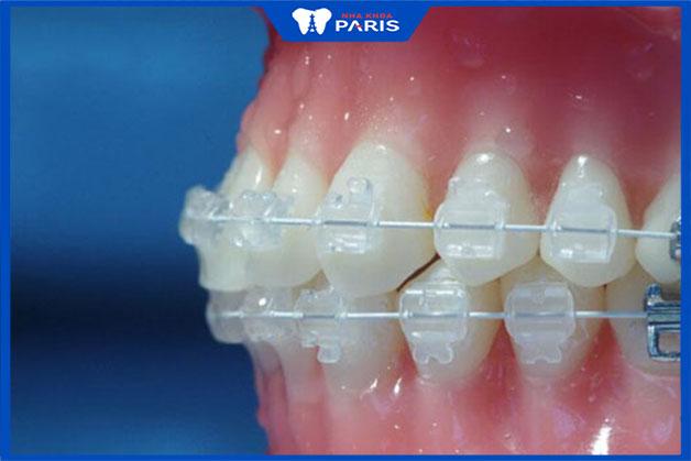 Loại mắc cài sứ cho răng hô tốt nhất