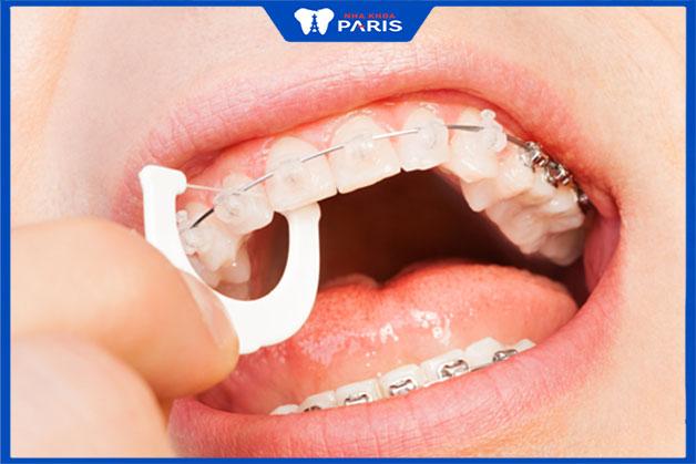 Đánh răng cẩn thận ít nhất 2 lần mỗi ngày