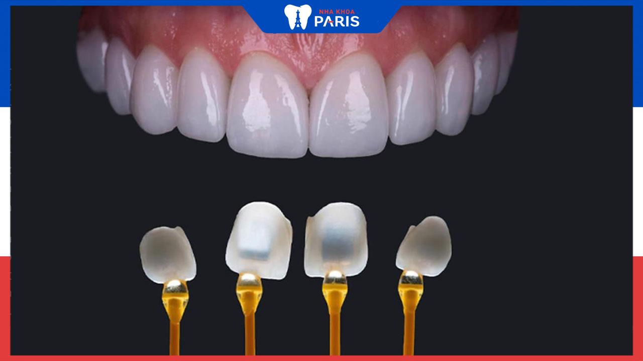 Dán răng sứ veneer và những thông tin cần thiết cần biết