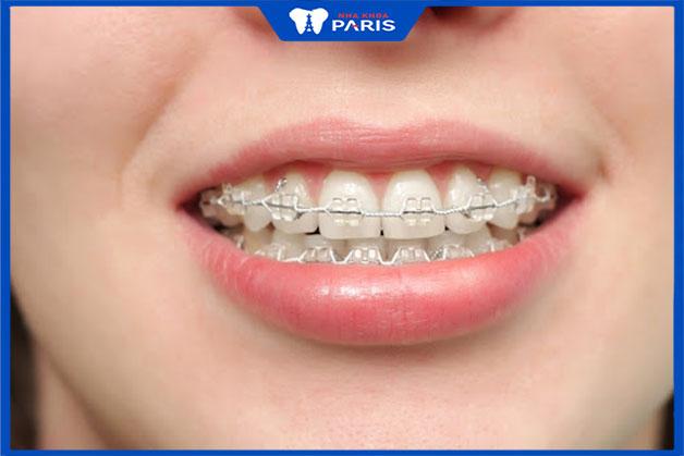 Định nghĩa niềng răng là gì