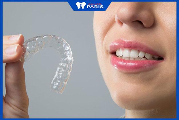 Đối tượng phù hợp sử dụng khay niềng răng invisalign