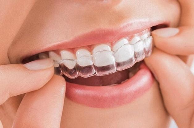 Hàm duy trì là bước cuối và quan trọng trong kỹ thuật niềng răng invisalign