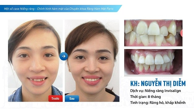Niềng răng trong suốt an toàn hiệu quả