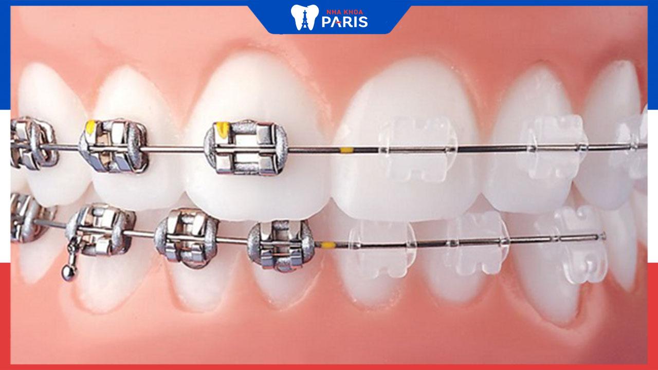 Điểm danh các phương pháp nẹp răng hiện nay