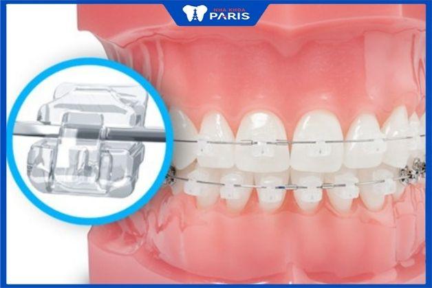 Niềng răng bằng mắc cài sứ tạo lực siết chỉnh nha